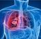 Sintomas da Tuberculose | Preço de Convênio Médico