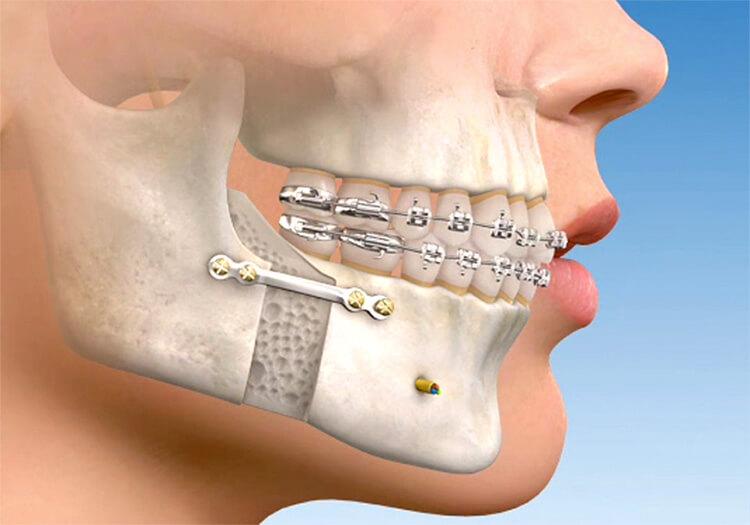 Quanto custa uma cirurgia ortognatica: Tudo sobre