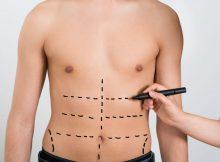 plano de saúde Unimed cobre lipoaspiração