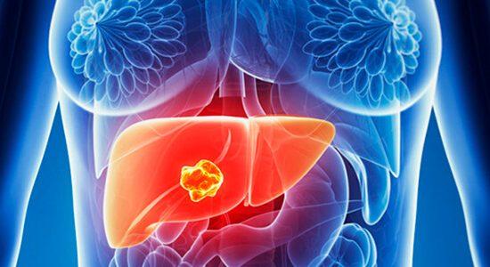 Câncer de fígado