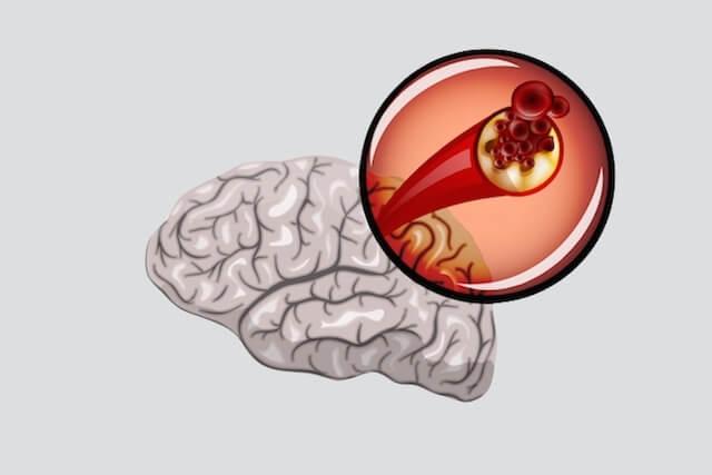 Aterosclerose cerebral